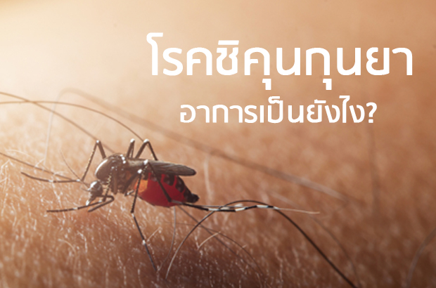 โรคชิคุนกุนยา อาการเป็นอย่างไร